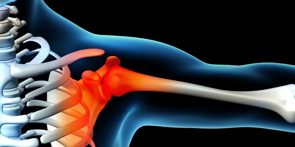 An X-Ray illustration showing joint pain in a shoulder.