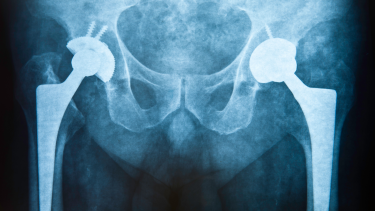 Image of a hip X-ray
